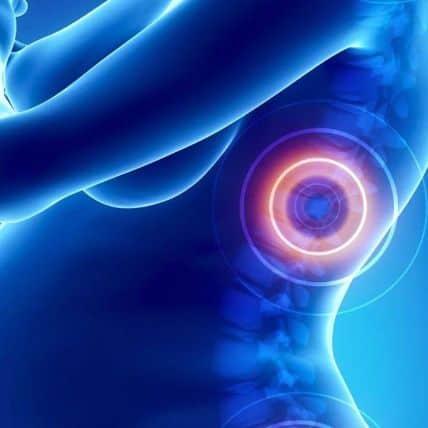 pregnancy pain relief